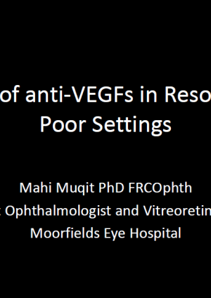 Use of anti-VEGFs in Resource Poor Settings - Mahi Muqit
