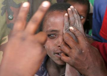 300600_Ethiopia_Trachoma_in_Gamo_Gofa_cRaul_Vasquez02
