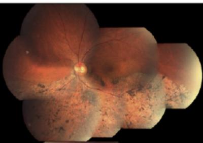 Figura 2.- Fondo de ojo (OI) de un paciente con retinosis pigmentaria. Las distrofias retinianas son enfermedades monogénicas en las que la mutación de alguno de más de 200 genes es la causa de la enfermedad. La secuenciación de siguiente generación permite el análisis simultáneo de cientos o miles de genes con lo que el diagnóstico genético de este grupo de enfermedades se ha visto facilitado enormemente.