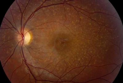 """Figura 2. Foto clínica de fonde ojo de paciente con enfermedad de Stargardt donde se aprecia flecks o """"manchas pisciformes"""""""