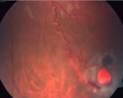 Figura 3. Foto clínica de fondo de ojo de paciente con síndrome de von Hippel-Lindau donde se aprecia un hemangioblastoma