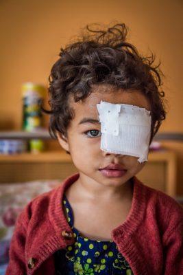 Malagasy Girl with bandage