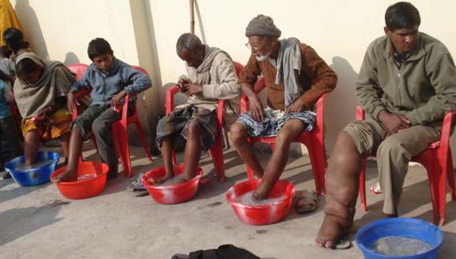 IAPB Africa: NCDs and Disability; Image from Lancet global Health blog: patients with elephantiasis