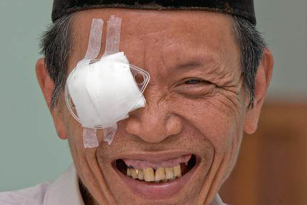 An East Asian man with a patch on his right eye, with a wide smile--post cataract surgery