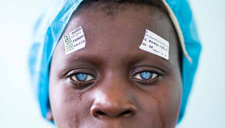 Webinar: Primary Eye Care Training Manual. 7-year-old Mebdji is treated for bilateral cataract by Dr Richard Hardi in the D. R. Congo / Photo credit: Andras D. Hajdu