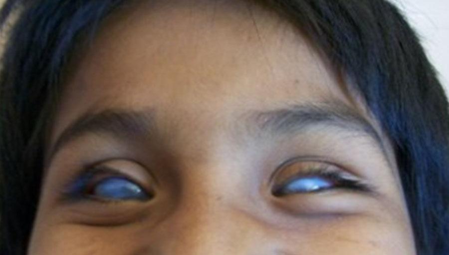 Importancia y Beneficio de la Genética en el Estudio de las Enfermedades Hereditarias del Ojo