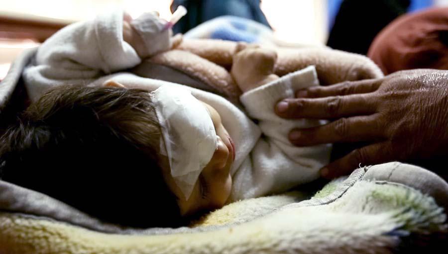 Ceguera en el Recién Nacido Prematuro. Photo by Hamayun Khan