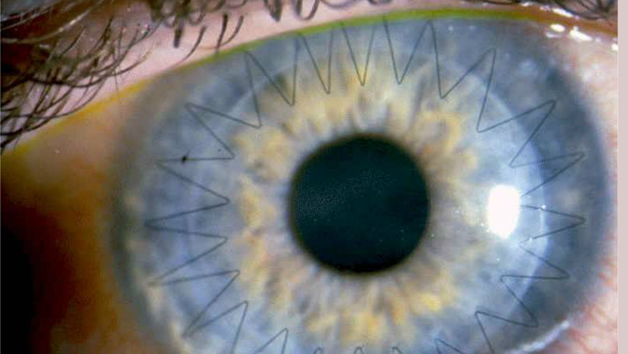 Sutured eye