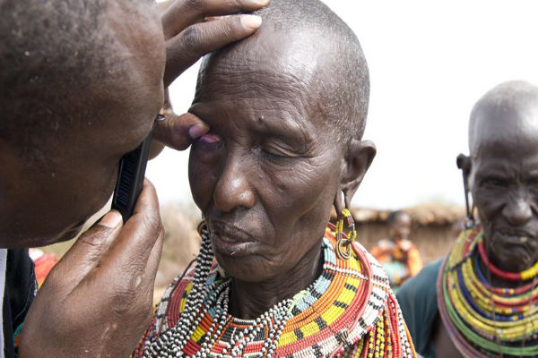 Trachoma examination