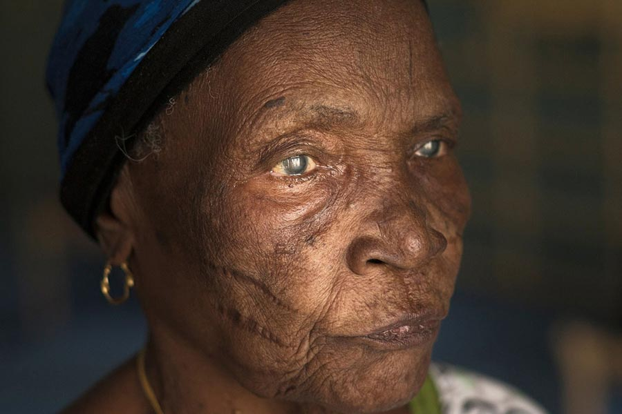 ageing and the eye