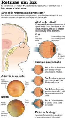 Retinas sin luz
