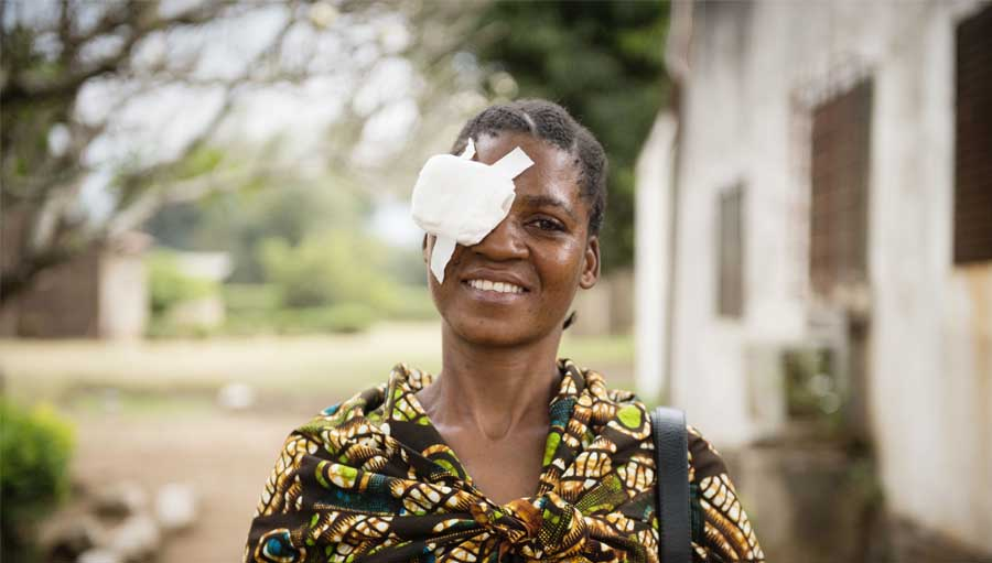 Suzanna, 34 years of age was pleased after receiving surgery for bilateral cataract